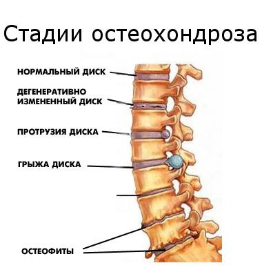стадии остеохондроз