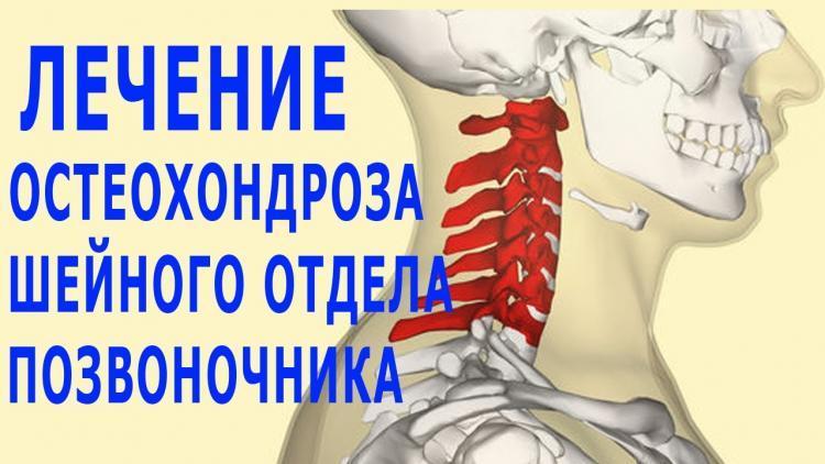 лечение остеохондроза шейного отдела